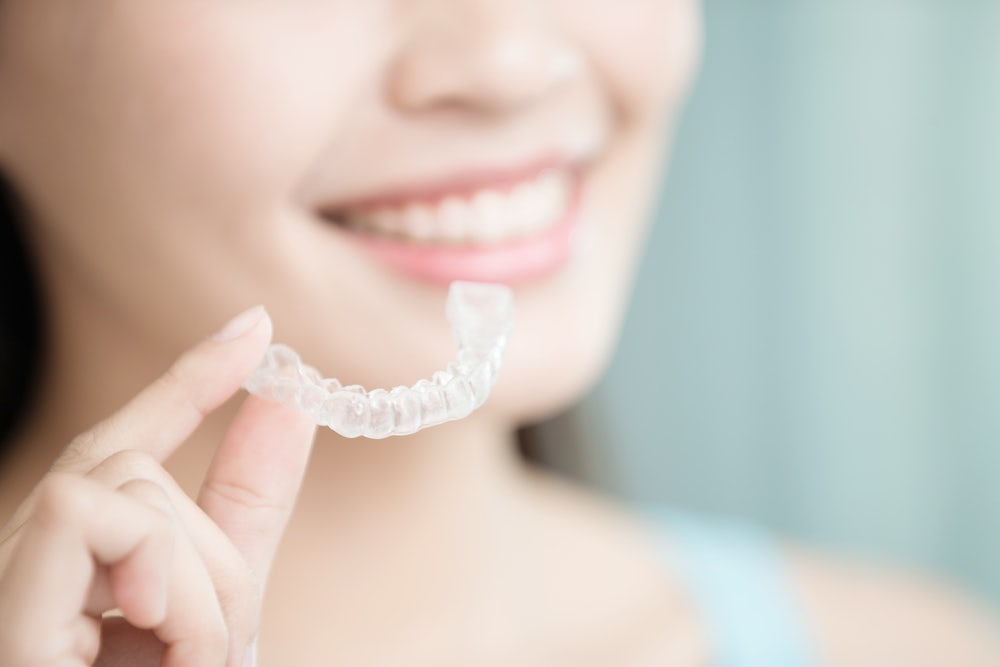 Woman with clear dental retainer