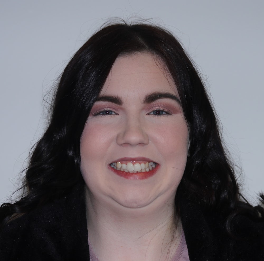 Shauna Kerrigan before invisalign