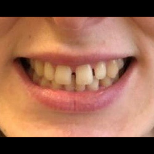 Martina - before 6 month braces and dental bonding