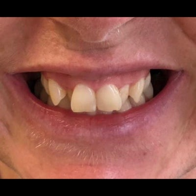 6 month braces 1 before