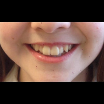 6 month braces 5 before