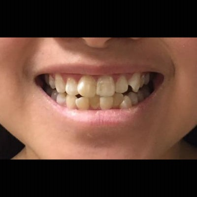 6 month braces 4 before