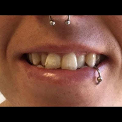 6 month braces 3 before