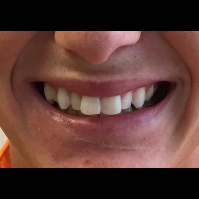 6 Month Braces 2 before