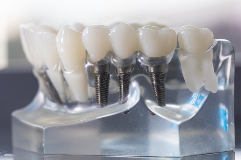 Cosmetic Dentists Blog | Crowns, Implants & Orthodontics | 3Dental