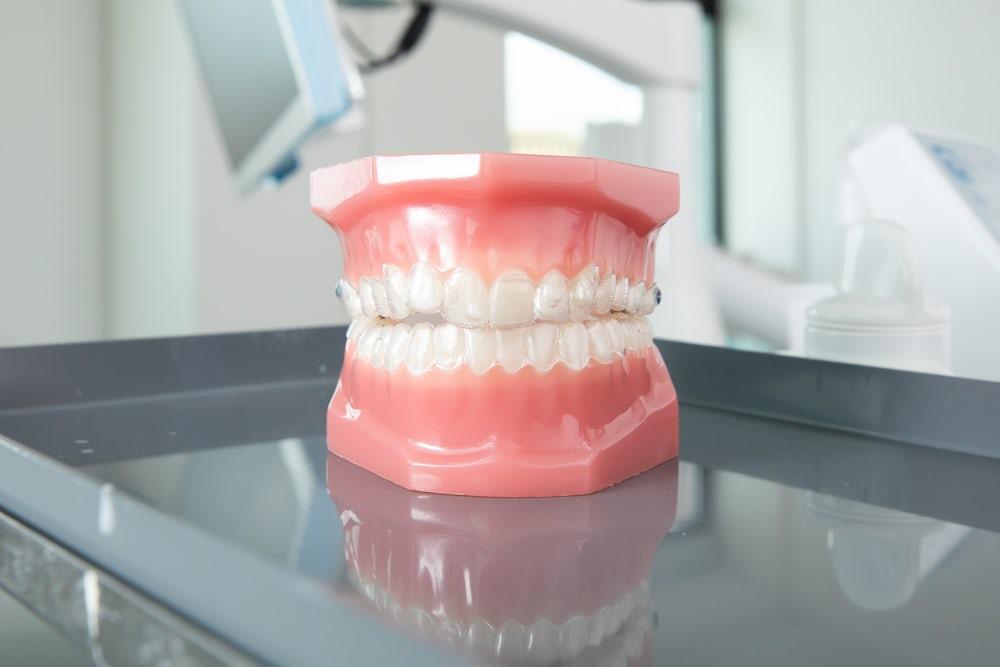 Aligners on dummy teeth