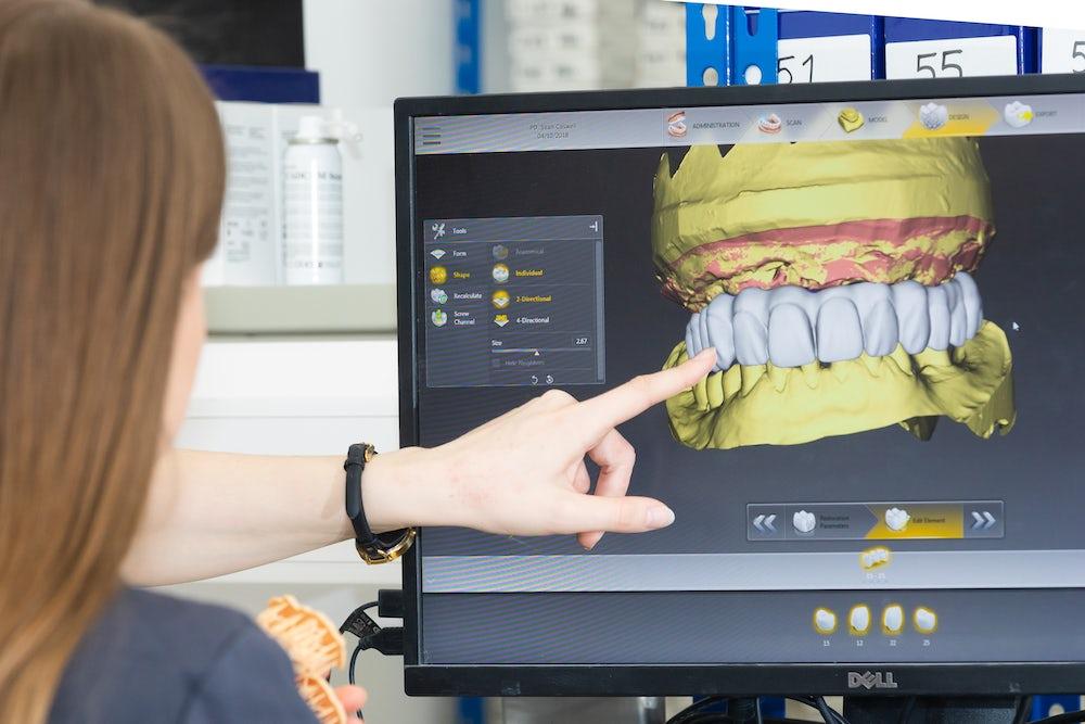dental lab CAD CAM technology