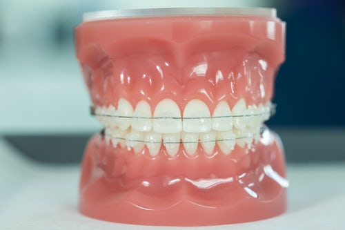 Orthodontist Dublin Clear Braces Teeth Straightening