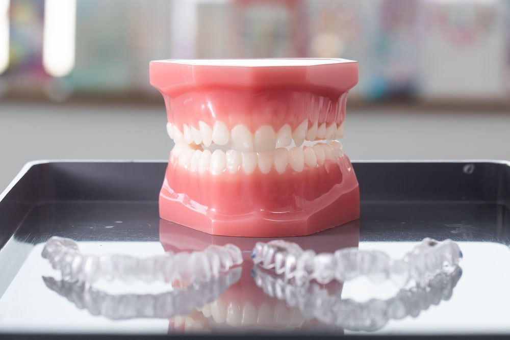 invisible aligners for straight teeth