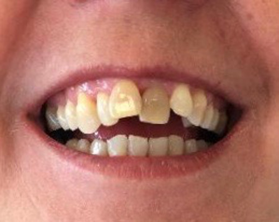 Fidelma - 6 month braces - before