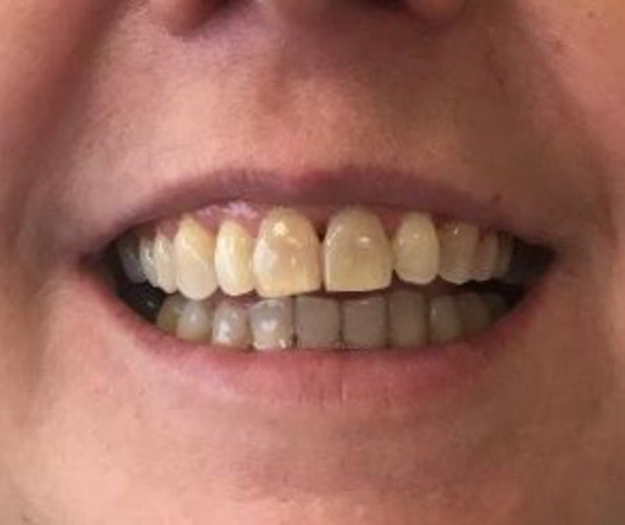 Fidelma - 6 month braces - after