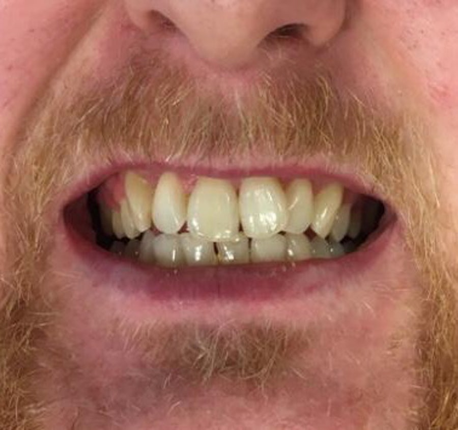 Karl - 6 month braces - before