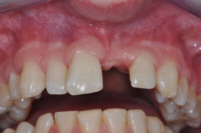 Single Tooth Implant 3 before