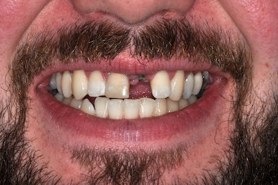 Single Tooth Implant 2 before