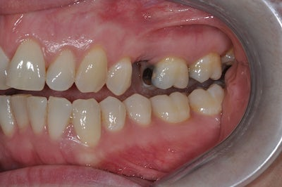 Single Tooth Implant 4 before
