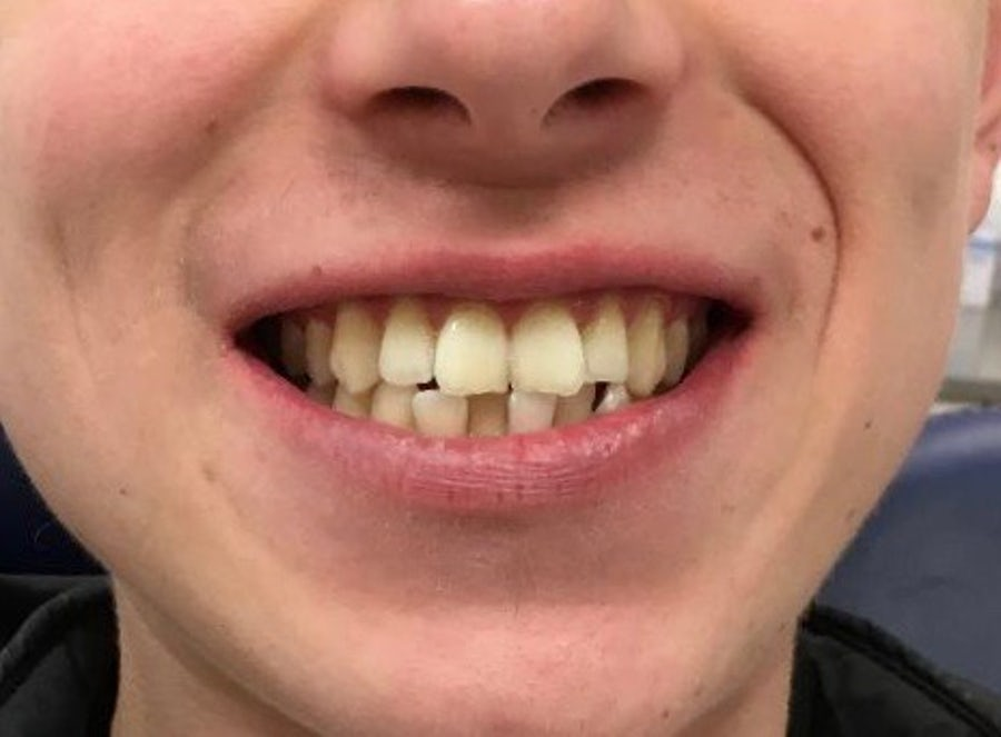 Alex - 6 month braces - before