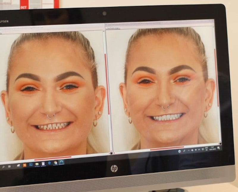 What Are Veneers In A Day?