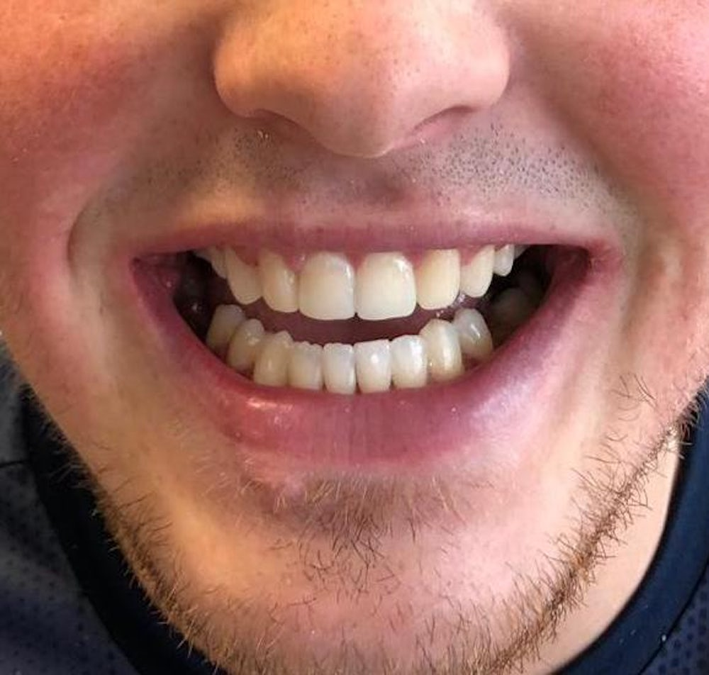 6-month-braces-and-dental-bonding-after