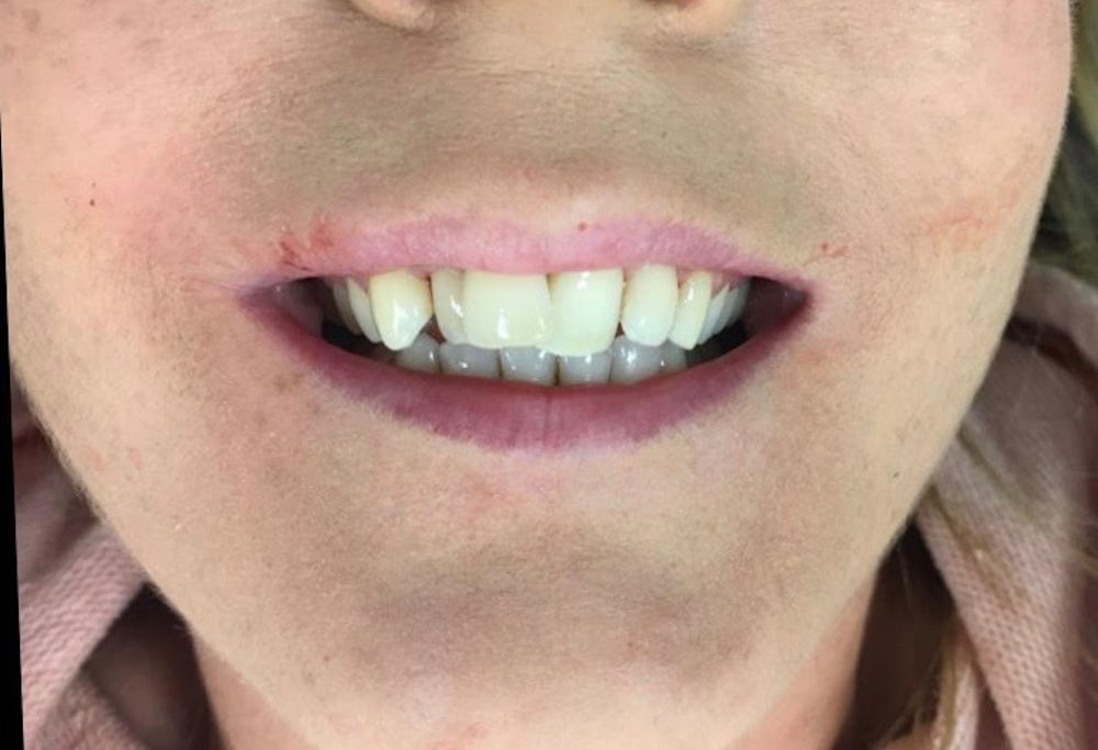 donna-6-month-braces-before