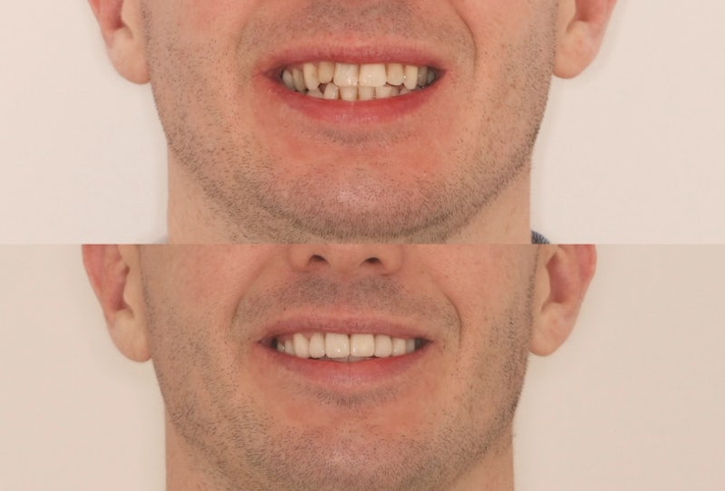 Why Choose 6 Month Braces?