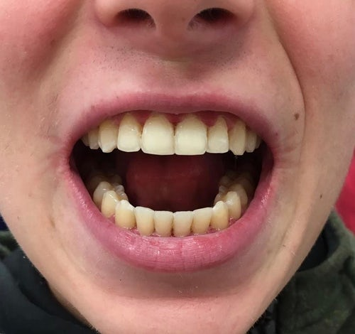 Alex - 6 month braces - after