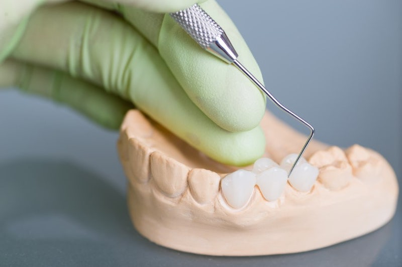 The 3Dental Guide to Crowns and Bridges